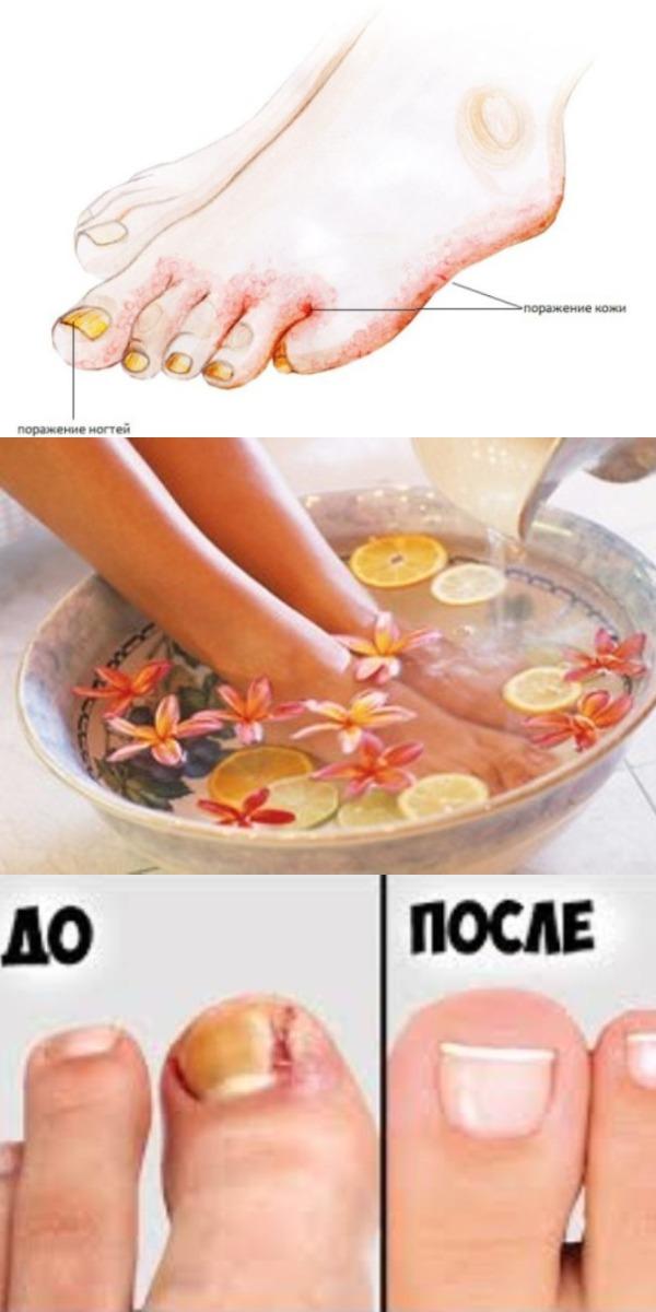 СЕНСАЦИЯ! Попрощайся с грибком ногтей и стоп с помощью смеси из 2 ингредиентов!