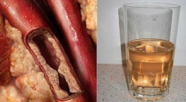Симптомы диабета исчезнут всего за 5 дней! Все, что вам нужно, это два ингредиента и этот простой рецепт!