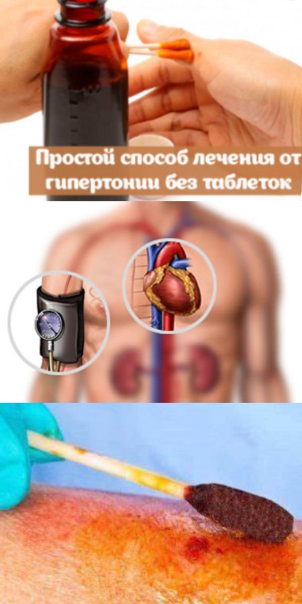 Простой способ лечения от гипертонии без таблеток