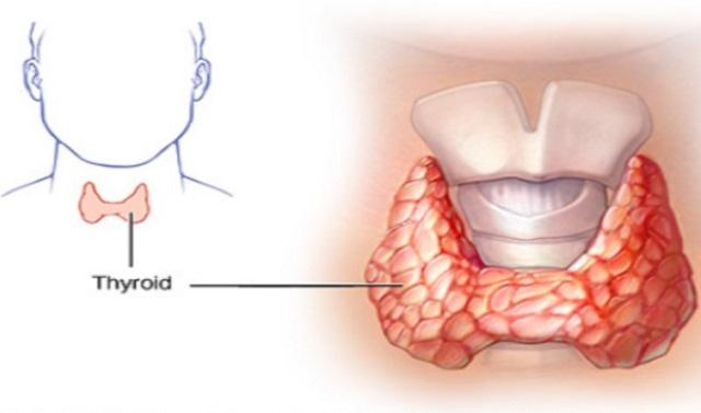 Вы никогда не услышите об этом от своего врача: Как вылечить щитовидную железу с помощью всего двух ингредиентов!