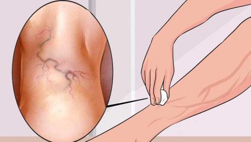 Восемь упражнений против варикоза