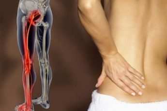 2 простых способа разблокировать седалищный нерв и быстро снять боль 1