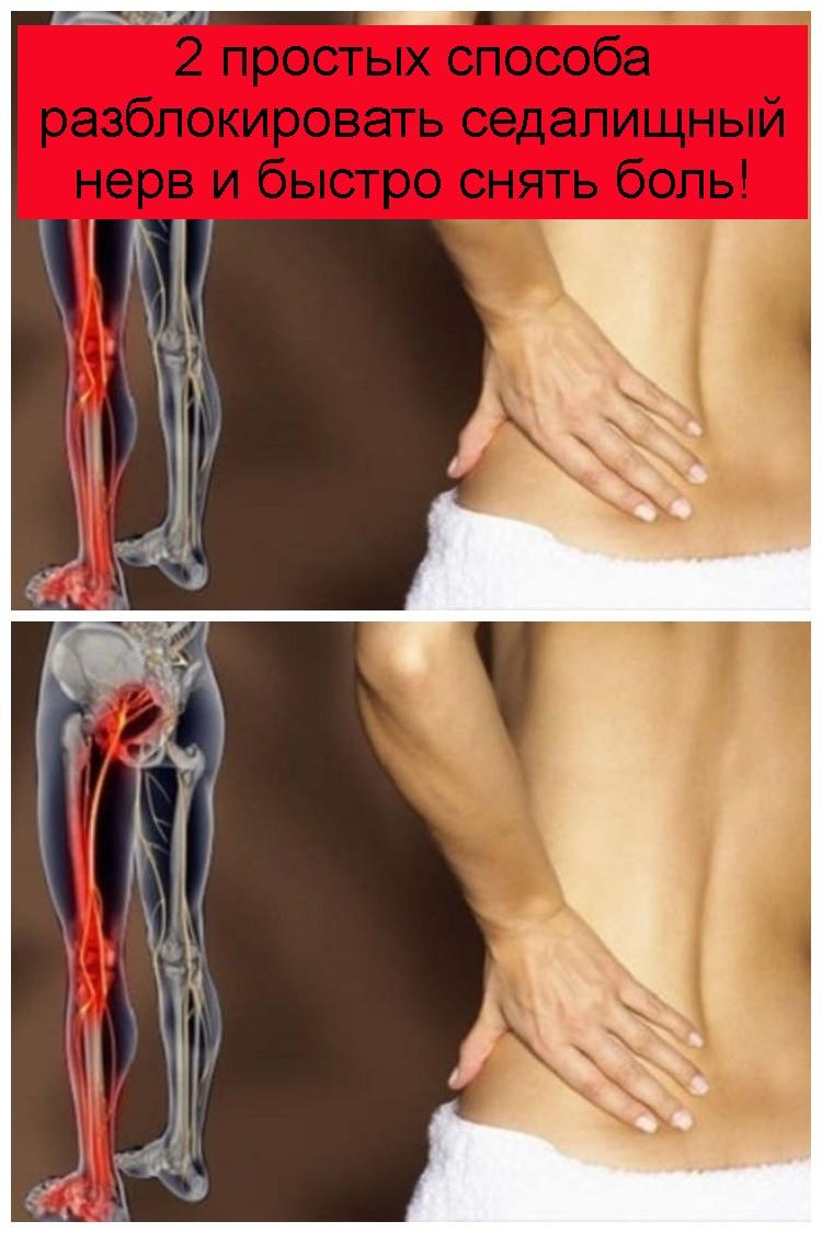 2 простых способа разблокировать седалищный нерв и быстро снять боль 4