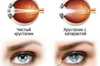 От катаракты простое лечение, в обычной травке — глаз спасение 1