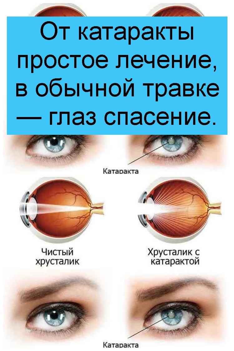 От катаракты простое лечение, в обычной травке — глаз спасение 4
